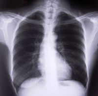 Emfizem bulos al plămânului - descriere, cauze, tratament cu medicamente