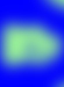 carte forme clinice particulare ale cancerului de san